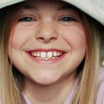 Смена молочных зубов у ребенка