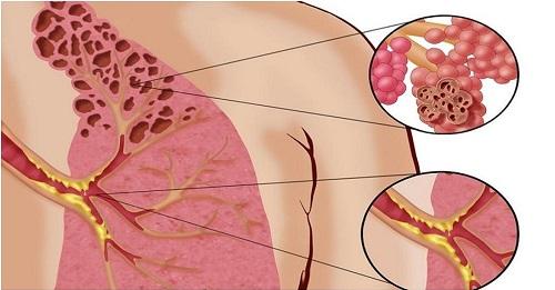 легкие, кашель, здоровье, вейп, курение, бронхит, пневмония