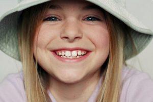 Советы родителям: у ребенка пятна на зубах